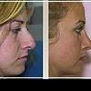 Ринопластика: вам не нравится ваш нос? Можно переделать